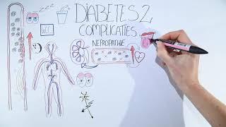 Diabetes 2 gevolgen