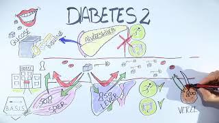 Diabetes 2 ontstaan